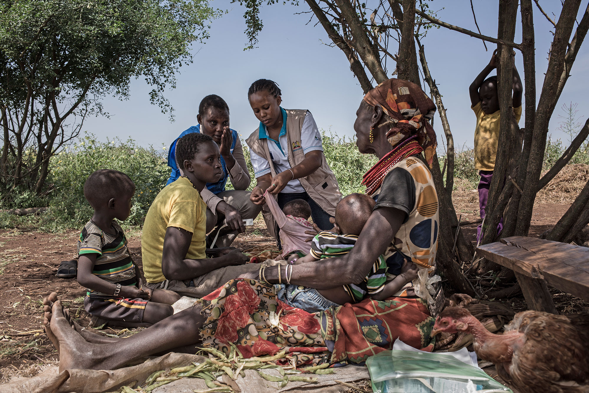 Widespread malnutrition Action Against Hunger
