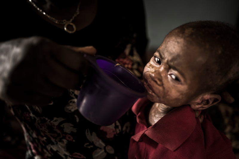 DR Congo aid is needed - Action Against Hunger