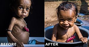 before-after-malnutrition_0
